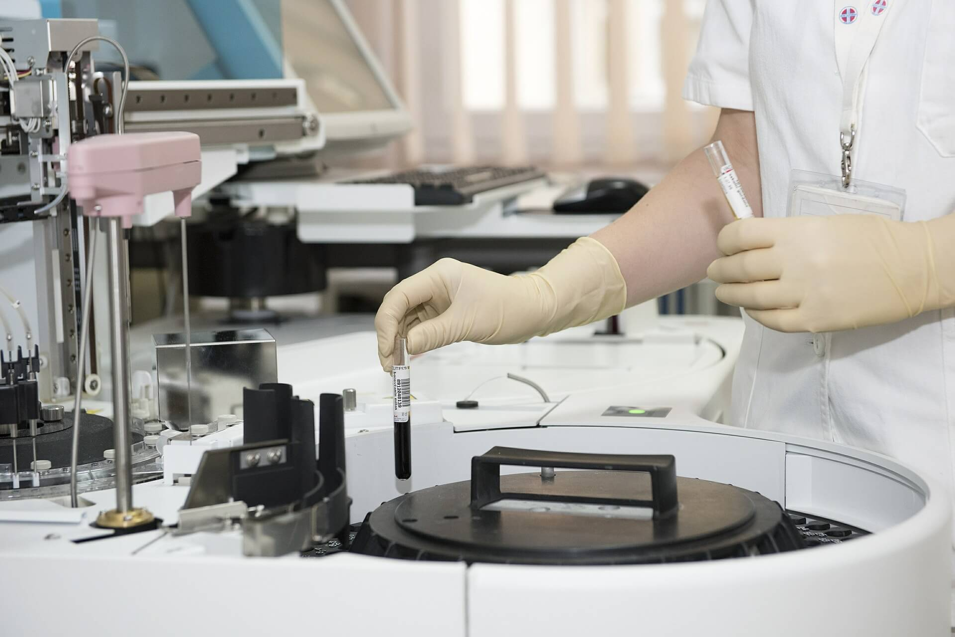 prenatalni testovi