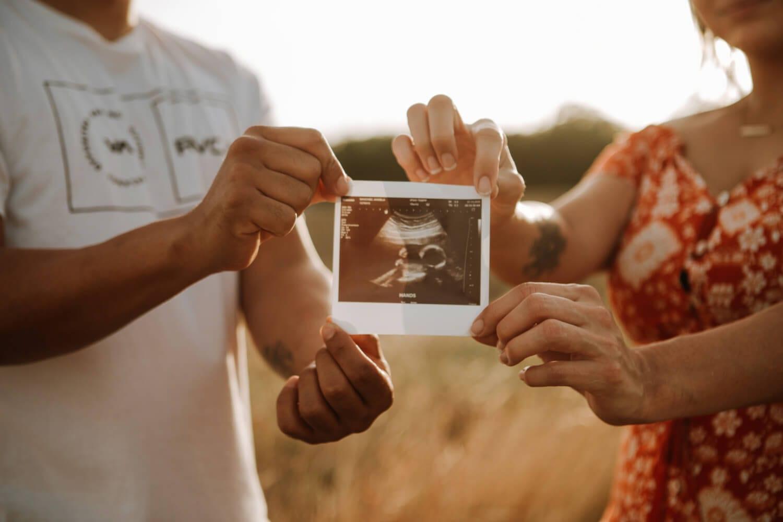 slika sa ultrazvuka u trudnoći