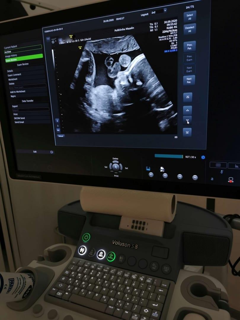 Prvi trudnički ultrazvuk Poliklinika Mazalin