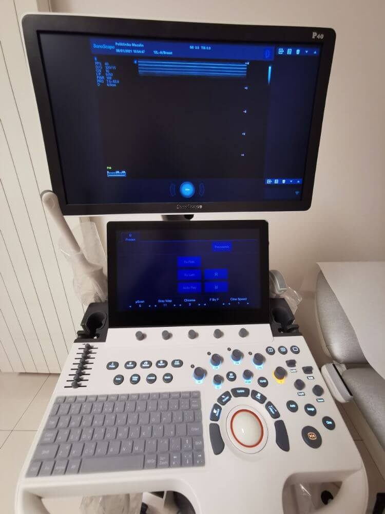 Novi ultrazvuk Poliklinika Mazalin